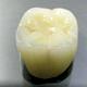 治療用仮歯