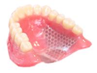 レジン床(保険の義歯)