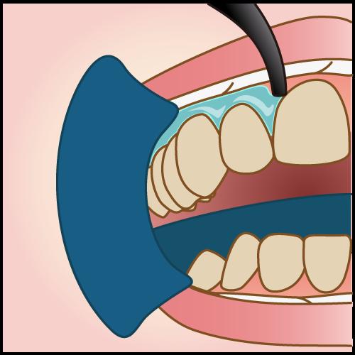 歯茎の保護